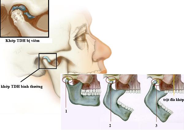 Phòng ngừa bệnh viêm khớp thái dương hàm, đau quai hàm